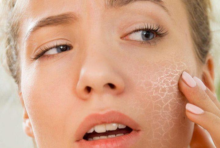 Сухая кожа - причины и признаки. Правильный уход за сухой кожей лица