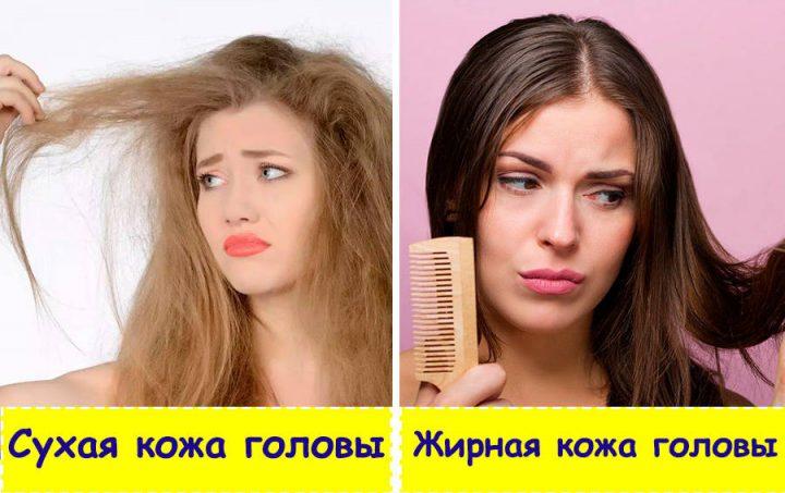 Шампунь выбираем по типу кожи головы - если кожа головы жирная, а волосы сухие, то выбираем шампунь для жирного типа