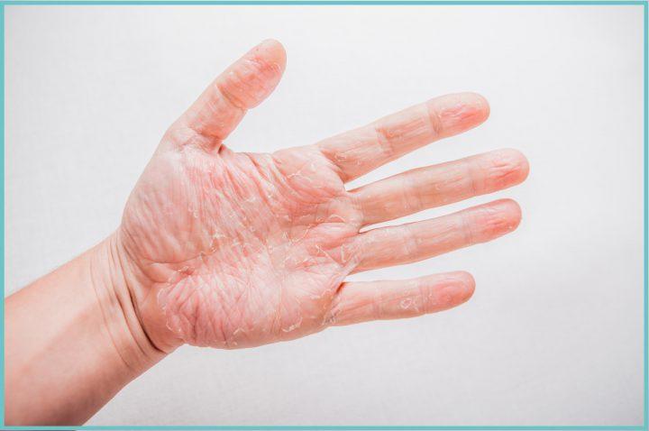 Сохнет кожа на ладонях рук
