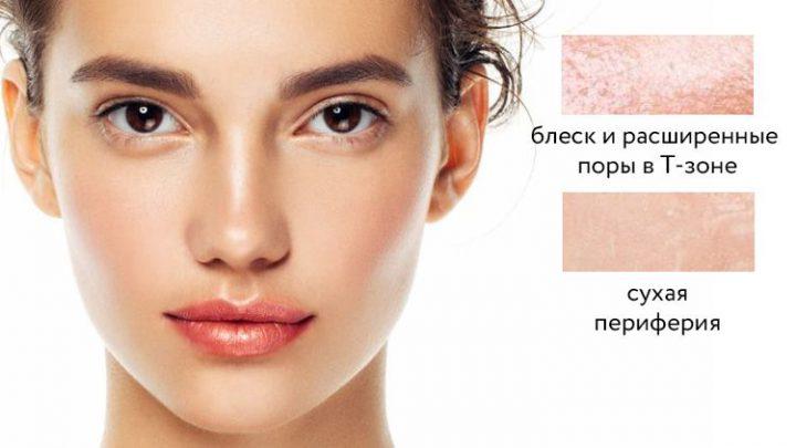 Характерные особенности комбинированной кожи