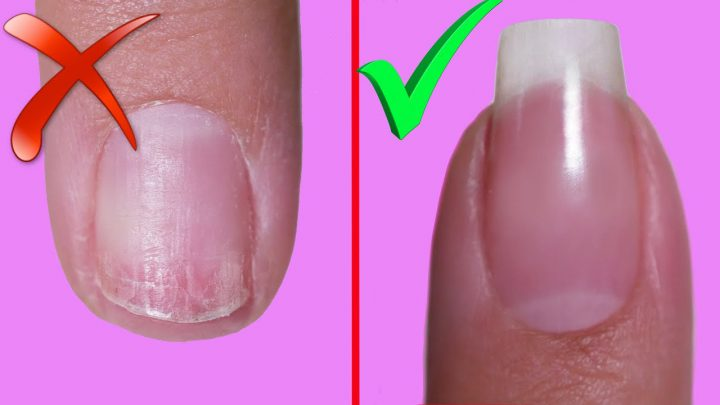 Внешние причины расслоения ногтей