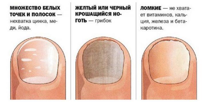 Внутренние факторы, приводящие к проблемам ногтевых пластин