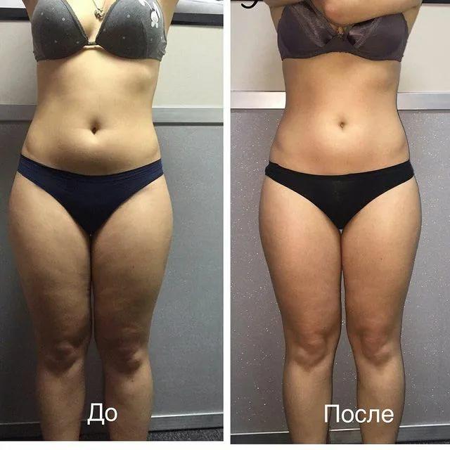 Антицеллюлитный массаж - медовый массаж живота, до и после, фото 1
