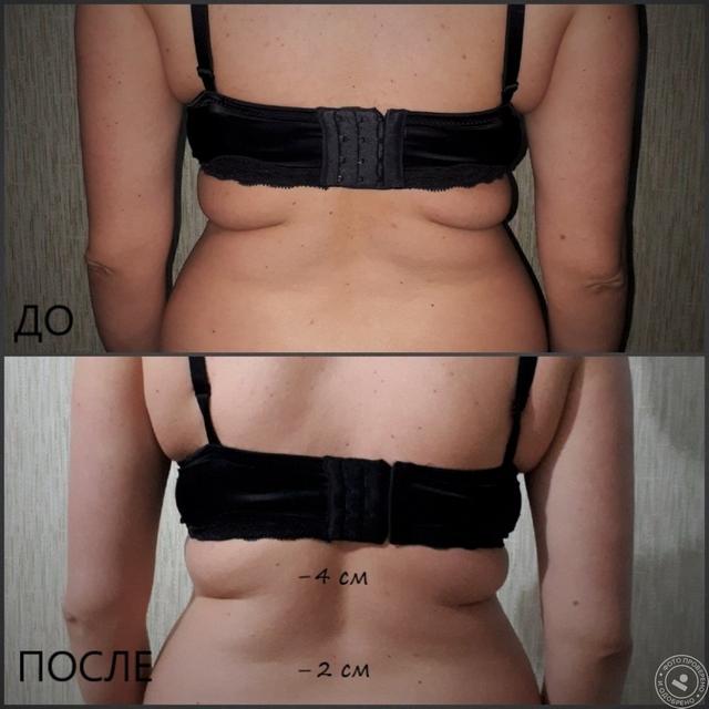 Антицеллюлитный массаж - медовый массаж живота, до и после, фото 10