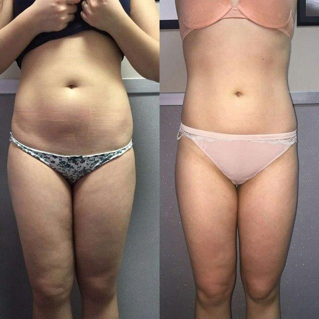 Антицеллюлитный массаж - медовый массаж живота, до и после, фото 2