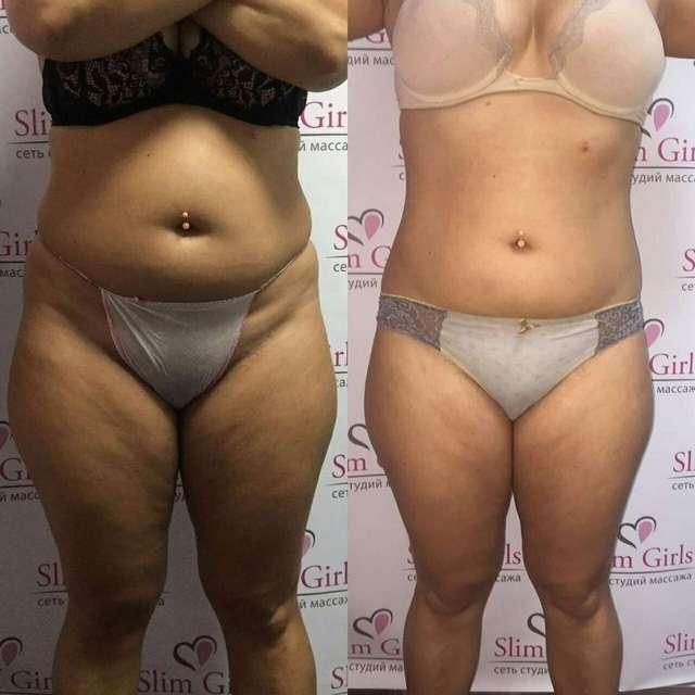 Антицеллюлитный массаж - медовый массаж живота, до и после, фото 3