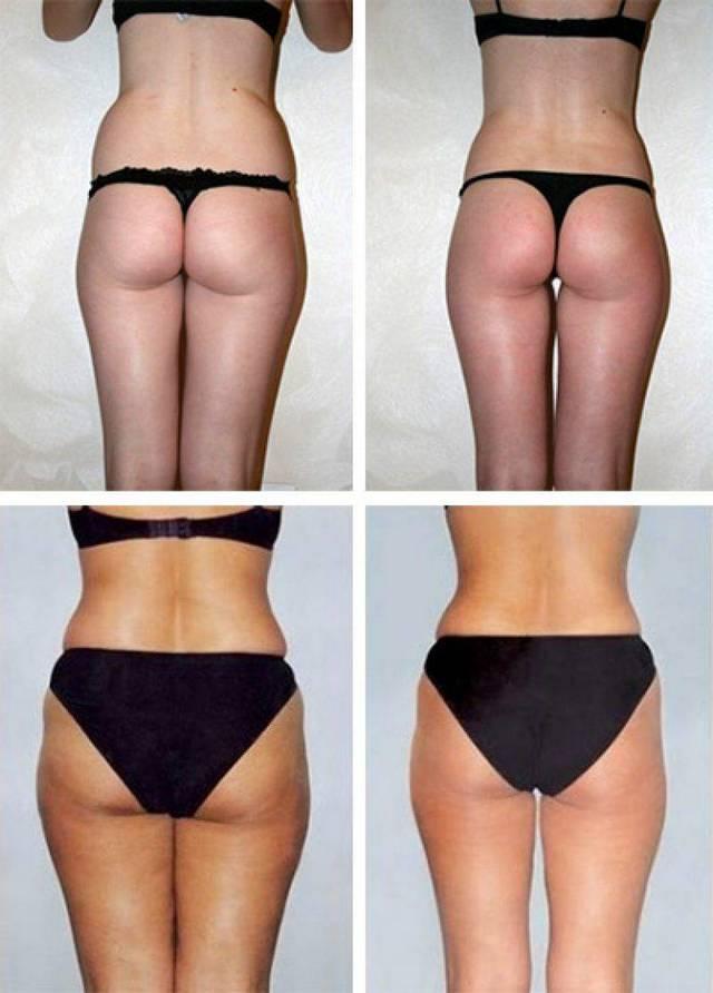 Антицеллюлитный массаж - медовый массаж живота, до и после, фото 6