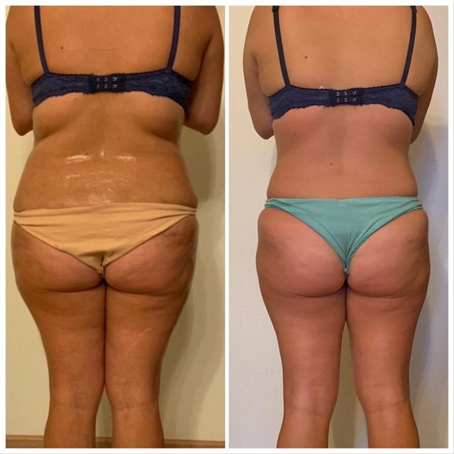 Антицеллюлитный массаж - медовый массаж живота, до и после, фото 7