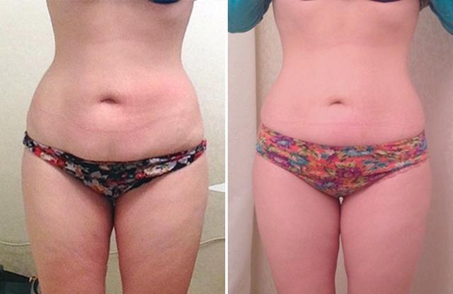 Антицеллюлитный массаж - медовый массаж живота, до и после, фото 8