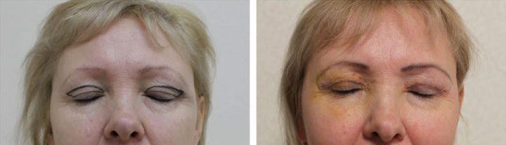 Блефаропластика верхних и нижних век:фото блефаропластики до и после