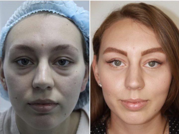 Блефаропластика верхних и нижних век: фото блефаропластики до и после