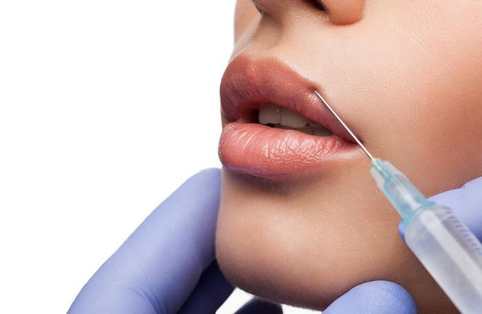 Увеличение и увлажнение губ гиалуроновой кислотой. Моделирование и коррекция контура губ ботулотоксином